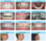 Bedont Orthodontics addresses adult orthodontic problems