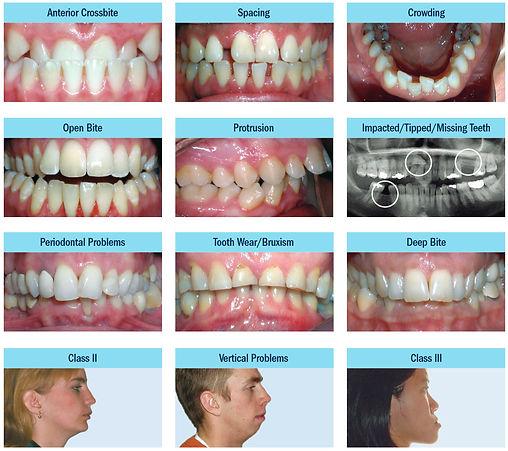Bedont Orthodontics addresses adult orthodontic problems