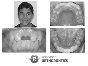 Before orthodontic treatment at Rockwood Orthodontics