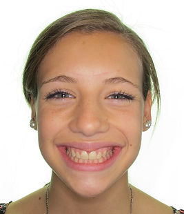 After-picture of patient at Bedont Orthodontics after treatment