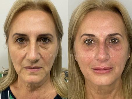 Protocolo Visage para Harmonização Facial
