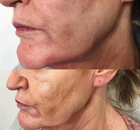 lip and jaw fillers by lisa thompson