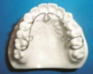 alf-appliance-dentist-12-300x239.jpg