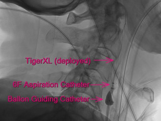 Tigertriever XL's Must-Haves for ICA Occlusions
