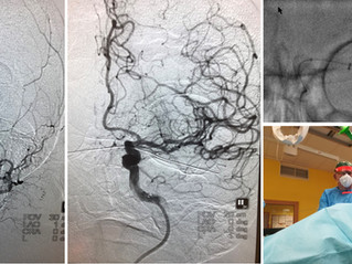 Visible Stentretriever dealing with COVID-19 protection during stroke treatment