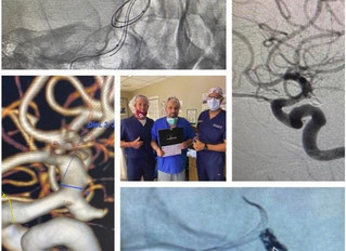 Ruptured PCOM Aneurysm Treated with Comaneci 17