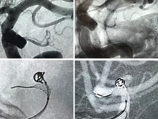 Radial Access with Difficult and Tortuous Anatomy