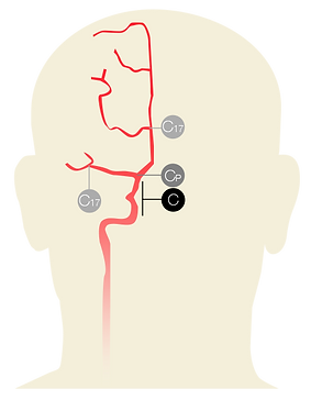 Suggested device version per aneurysm location