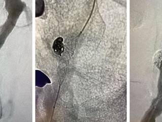 Ruptured Wide Neck Vertebral Aneurysm