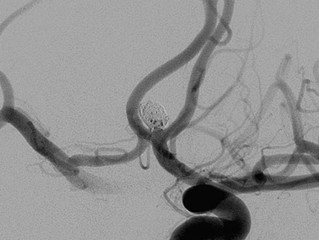 Comaneci 17 Assists Ruptured ACOM Aneurysm's Treatment