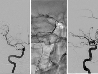 Combined Therapy for Vasospasm