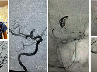 ICA Terminus Aneurysm Treatment
