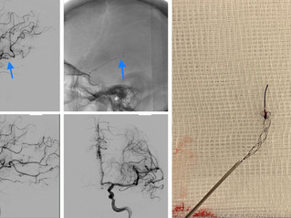 Secondary M3 Occlusion Treated with Tigertriever 13