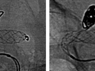 ''Very good result without Stent...''