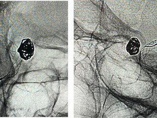 Unruptured Carotid Ophthalmic Aneurysm Assisted Coil By Comaneci
