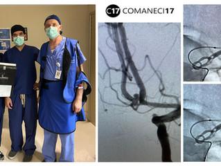 Ruptured ACOM Aneurysm Embolization Assisted Comaneci 17
