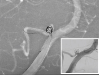 Ruptured PICA Aneurysm Coil Assisted By Comaneci 17
