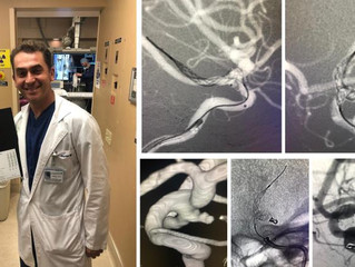 PCom Aneurysm Treatment - CA, USA