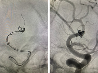 Ruptured, Wide Neck Tri-Leaf Clover MCA Bifurcation Aneurysm