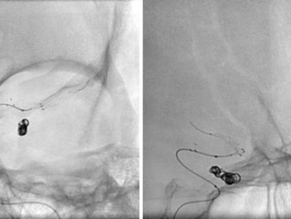 Tigertriever 13 Stentectomy
