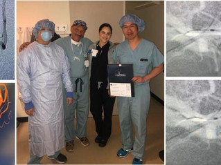 Comaneci Assists ICA Terminus Aneurysm Treatment, Houston, Texas