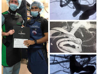 """""""Phenomenal job supporting the coil mass and stabilizing microcatheter"""""""