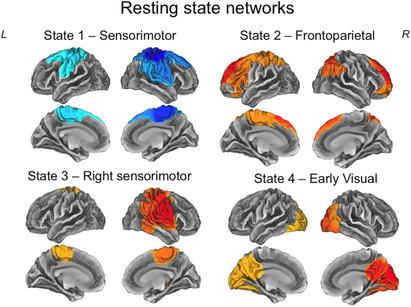 Functional network dynamics in a neurodevelopmental disorder of known genetic originHawkins, Akarca, Zhang, Brkić, Woolrich, Baker, & Astle. Human Brain Mapping