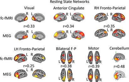 Electrophysiological measures of resting state functional connectivity and their relationship with working memory capacity in childhood. Barnes, Woolrich, Baker, Colclough & Astle.  Developmental Science