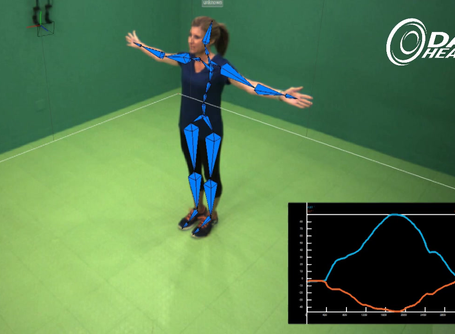 Movement Review:  Forward Lunge