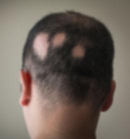 Alopecia Aerata.jpg