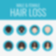 hair loss replacement