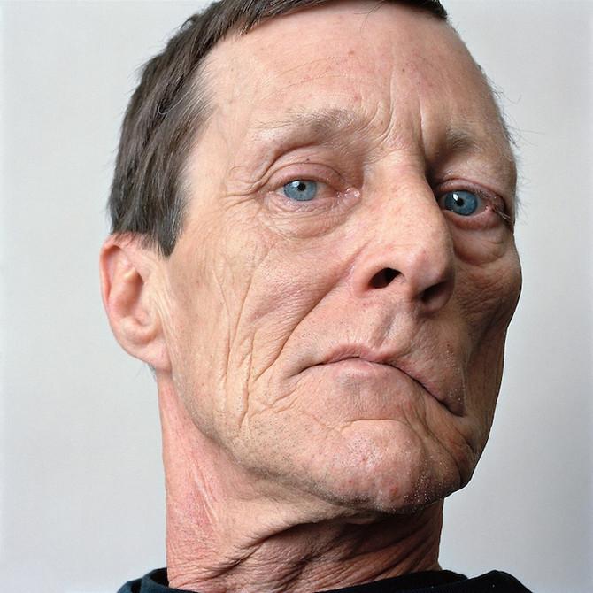 O que é Paralisia Facial?