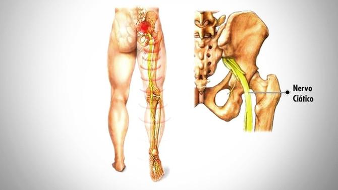 Dor no nervo ciático, causas, sintomas, tratamento e prevenções
