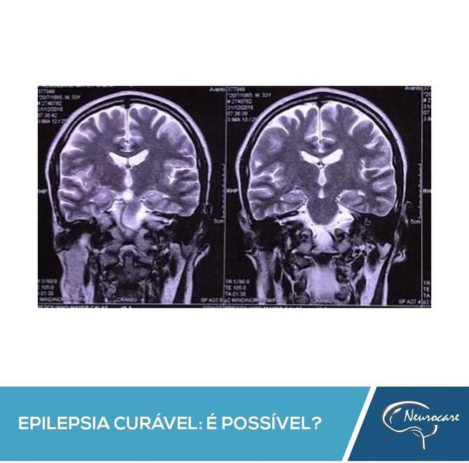 Epilepsia curável: é possível?