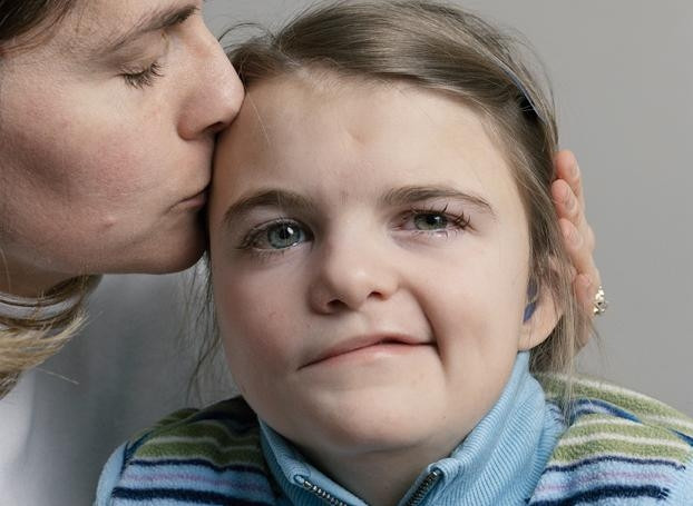 Metade do rosto puxando? Saiba mais sobre o espasmo hemifacial.