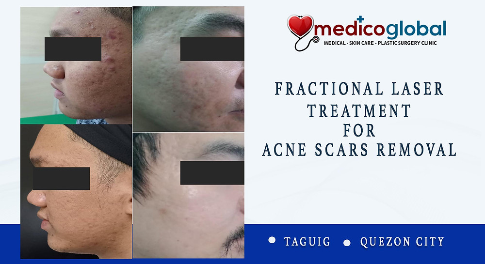 Fractional co2 laser for acne scars removal