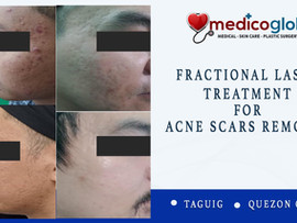Goodbye Acne Scars?  Try our newest Acne Scar Removal - CO2 Fractional Laser Treatment