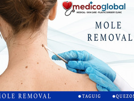 Need a Mole Removal?