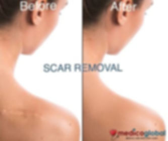medico global clinic scar removal manila