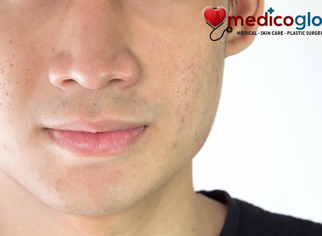 Scar Removal Treatment using CO2 Fractional Laser at Medico Global Timog Avenue QC Branch @Price OFF