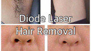 Diode Laser Hair Removal at Medico Global Clinic - Taguig, Metro Manila