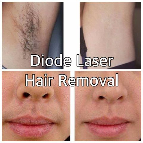 Diode Laser Hair Removal At Medico Global Clinic Taguig Metro