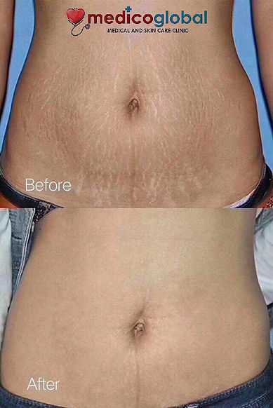 stretchmark removal at medico global cli