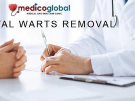 Genital Warts Removal at Medico Global Clinic Manila
