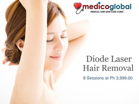Diode Laser Hair Removal at Medico Global Clinic