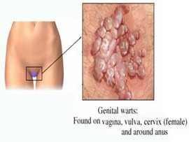 Genital Warts Removal at Medico Global Clinic Taguig City, Metro Manila