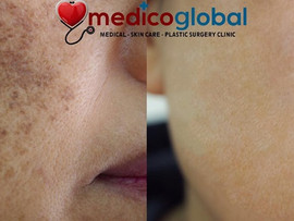 THE MOST EFFECTIVE WAY TO TREAT MELASMA