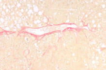 Liver fibrosis in a Nonalcoholic Steatohepatitis Mouse model