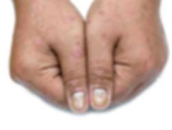 Psoriatic nail disease and psoriatic ski