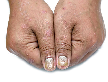 Psoriatic nail disease and psoriatic ski